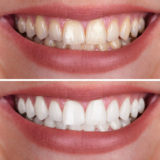tooth discoloration with whitening