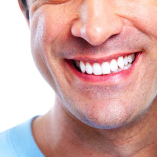 teeth whitening - concord dentist